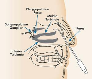 intranasal lidocaine for migraines