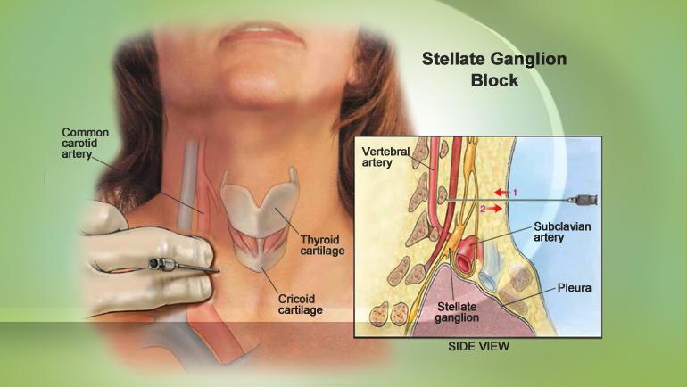 stellate-ganglion-block-3