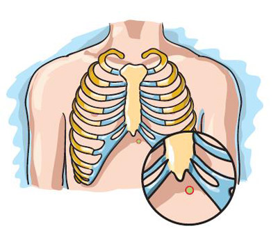 Splanchnic-Celiac-Plexus-Nerve-Block-4