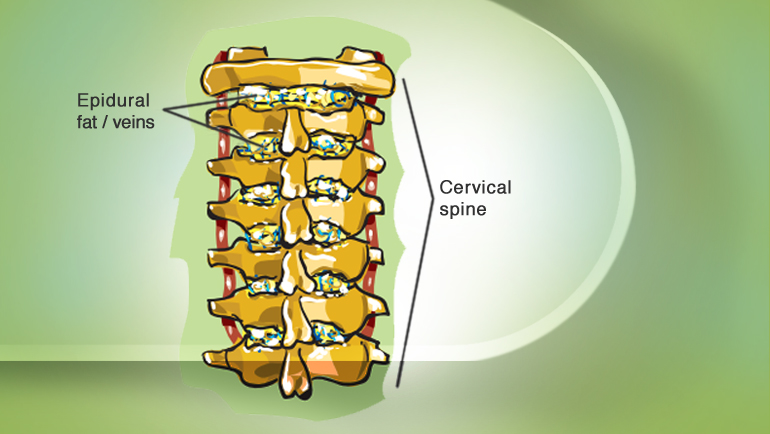cervical epidural nerve عصب اپیدورال گردنی