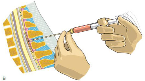 cervical-epidural-nerve-block-3