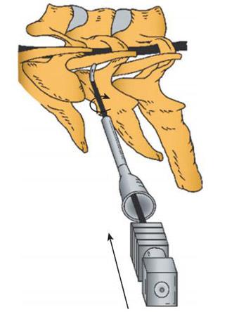 cervical-epidural-nerve-block-5
