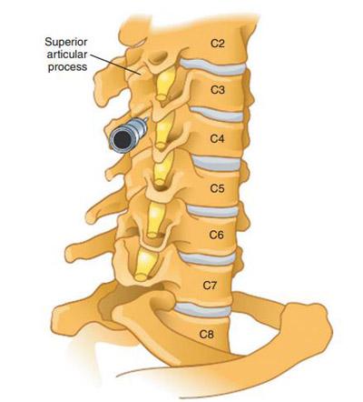 cervical-epidural-nerve-block-6