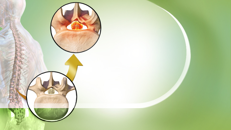 lumbar epidural injection درمان کمر درد تزریق اپیدورال