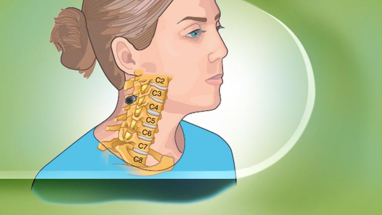 cervical-epidural-nerve-block-2