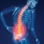 دردهای ناشی از پوکی استخوان