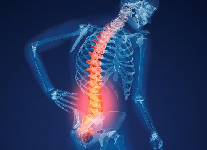 Osteoporosis-Pain