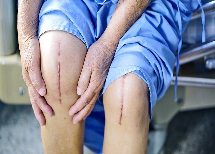 درمان تمام دردهای مزمن جراحی نیست