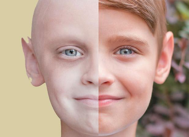 درمان سرطان با اوزون