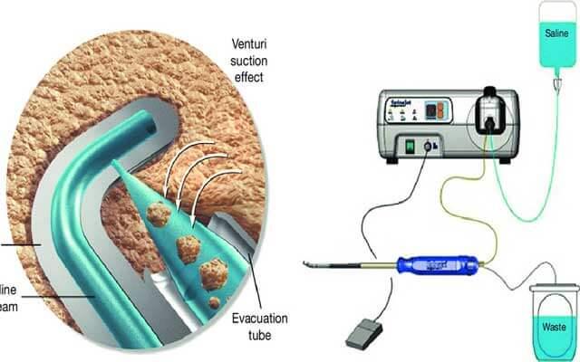 هیدرودیسککتومی