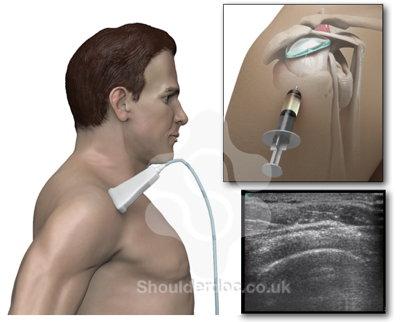 درمان درد شانه با اوزون تراپی