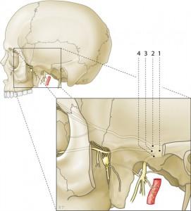 face pain درد صورت