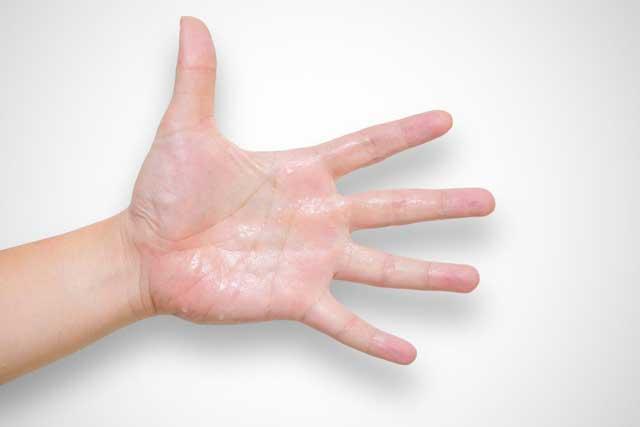 طب سوزنی عرق کف دست