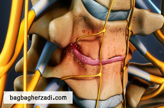 دیسکوپاتی گردن چیست؟